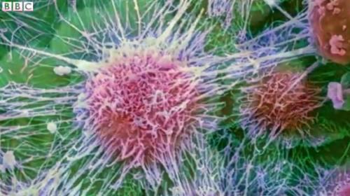 !!!CancerOrigin1