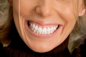 White-teeth-jpg