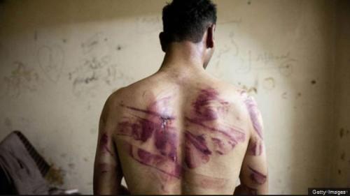 !!!!!SyrianTorture1
