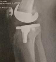 my-new-right-knee-in-place-x-ray