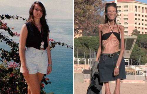 Life and death of the skinny woman on the planet